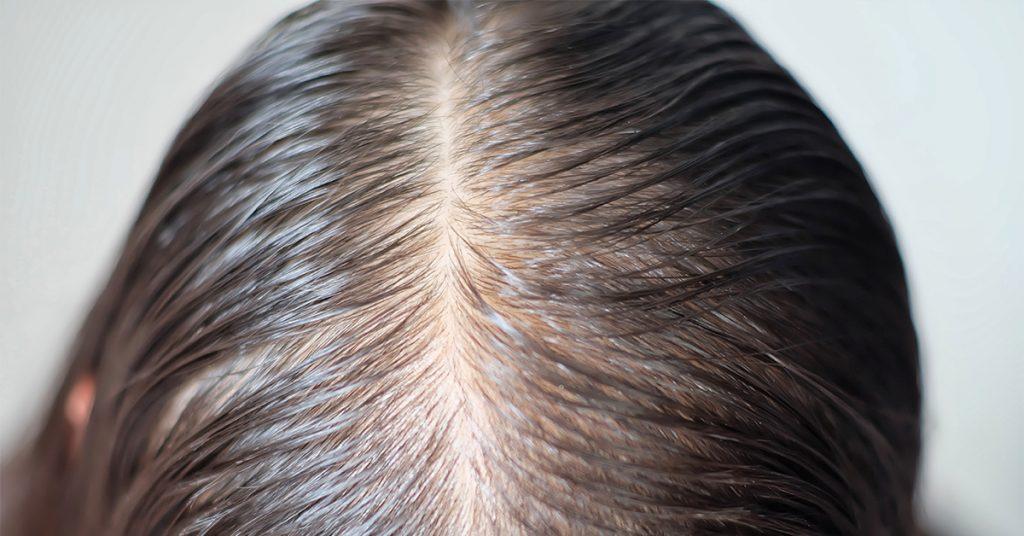女性脫髮 脂溢性脫髮
