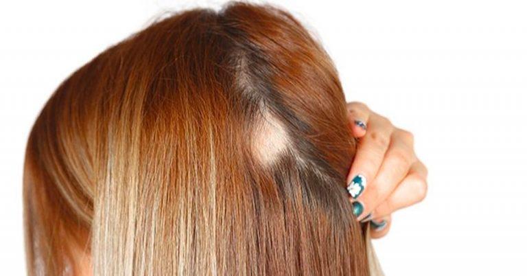 女性脫髮 斑禿