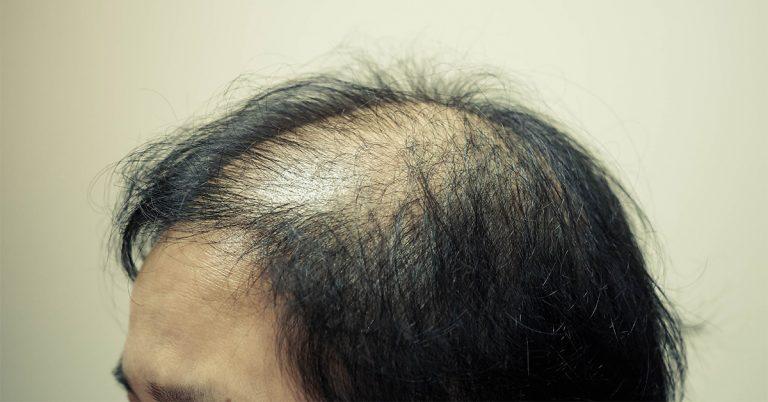 女性脫髮 雄性脫髮