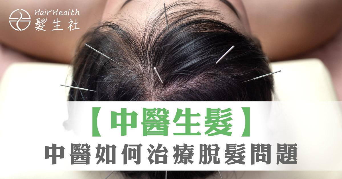 中醫如何治療脫髮
