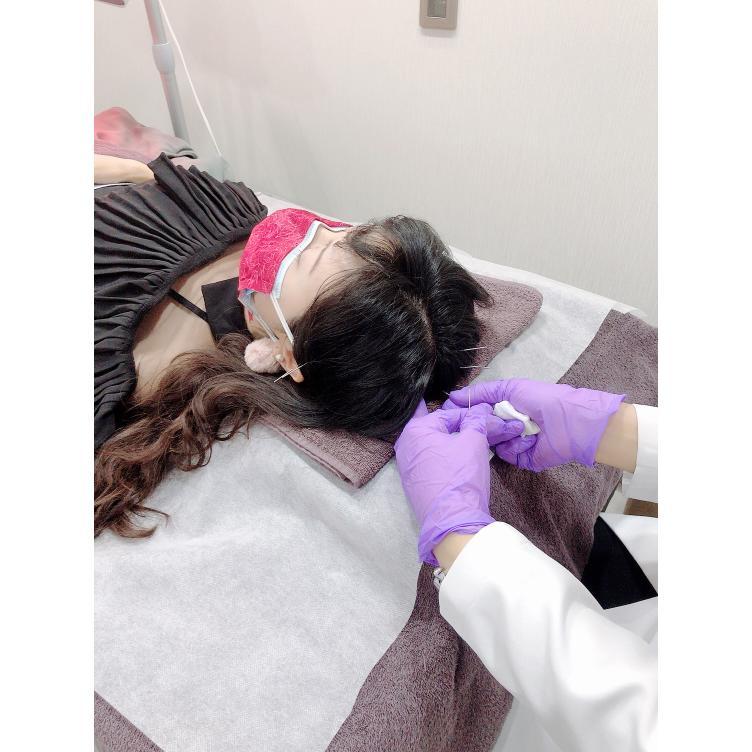 中醫生髮療程bloggerceci 針灸