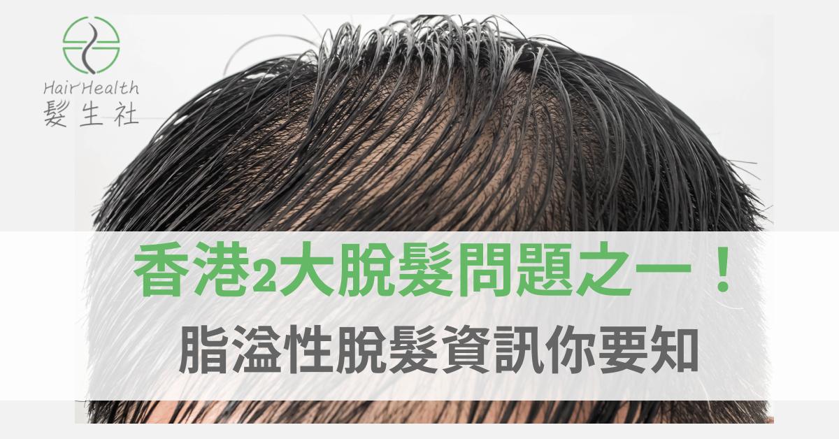 脂溢性脫髮